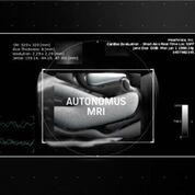 Imagen: Una solución de IA facilita los exámenes de resonancia magnética cardiacos (Fotografía cortesía de HeartVista)