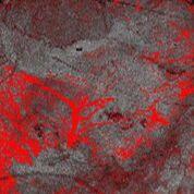 Imagen: Imagen de una TCO dinámica del melanoma avanzado tomada con el escáner VivoSight (Fotografía cortesía de Michelson Diagnostics).