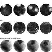 Imagen: Somas neuronales, procesos neuronales e imágenes de lapso de tiempo de una hemorragia en la corteza visual primaria (Fotografía cortesía de IPTH).