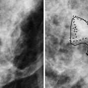 Imagen: Una mujer de 50 años de edad con cáncer invasivo sin (I) y con (D) delineaciones hechas por el radiólogo y por una computadora (Fotografía cortesía de Karen Drukker/Universidad de Chicago).