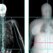 Imagen: Un estudio nuevo afirma que los pacientes obesos están expuestos a más radiación (Fotografía cortesía de la Universidad de Exeter).
