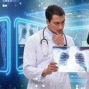 Imagen: Un estudio nuevo afirma que la IA puede ayudar a priorizar las radiografías de tórax (Fotografía cortesía de Shutterstock).