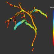 Imagen: Imágenes de MRCP+ del árbol biliar (Fotografía cortesía de Perspectum Diagnostics).