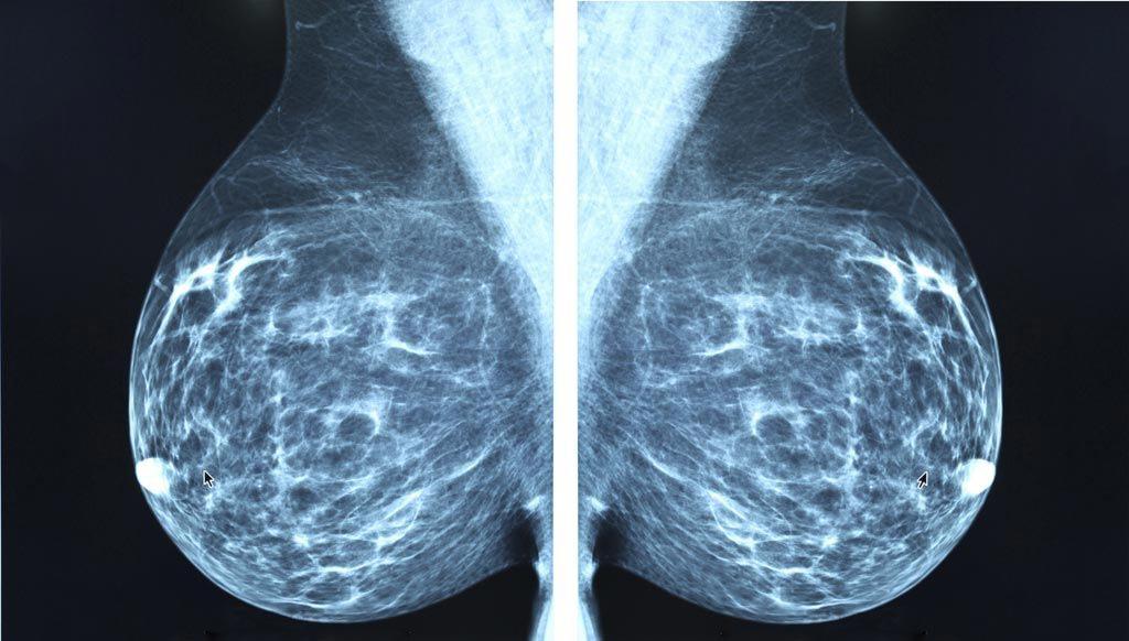 Imagen: El crecimiento del mercado mundial de imágenes mamarias es impulsado principalmente por los avances tecnológicos y la creciente incidencia del cáncer de mama (Fotografía cortesía de iStock).