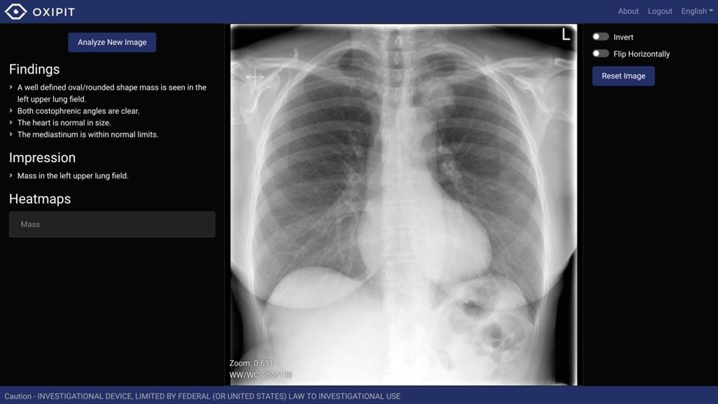 Imagen: Una fotografía del conjunto de imágenes de radiología ChestEye (Fotografía cortesía de Oxipit).