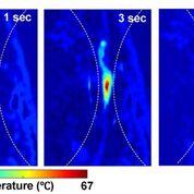 Imagen: Las imágenes fotoacústicas muestran temperaturas absolutas después de una ecografía enfocada de alta intensidad (Fotografía cortesía de la Universidad de Duke).
