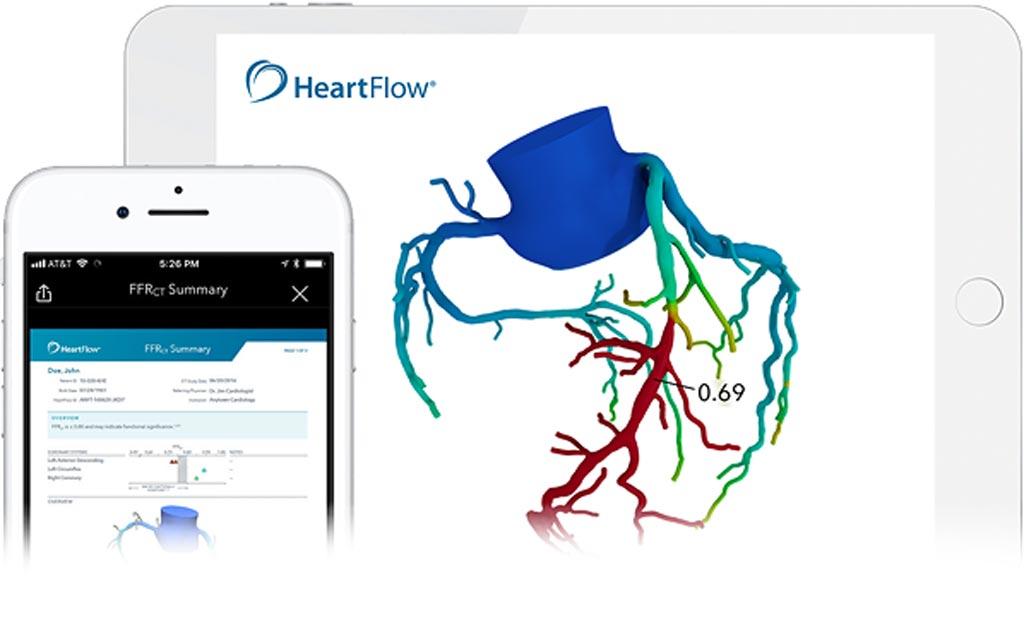 Imagen: HeartFlow desarrolla un software de análisis de IA no invasivo para crear modelos en 3D de las arterias coronarias a partir de tomografías computarizadas (Fotografía cortesía de HeartFlow).