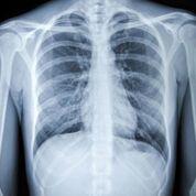 Imagen: Un estudio nuevo sugiere que modificar las historias clínicas electrónicas (HCE) de un hospital podría reducir significativamente la frecuencia de las radiografías de tórax realizadas en pacientes en la unidad de cuidados intensivos (UCI) (Fotografía cortesía de iStock).