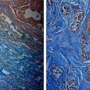 Imagen: Tumor sensible a la radiación (I), y tumor resistente a la radiación (D). Los tumores sensibles tienen más colágeno (azul) (Fotografía cortesía de la Universidad de Arkansas).