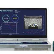 Imagen: El sistema de ultrasonido portátil, EchoSure, detecta los coágulos sanguíneos (Fotografía cortesía de Sonavex).