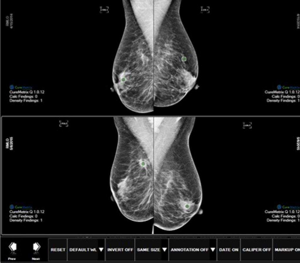 Imagen: El software cmTriage permite a un radiólogo personalizar, clasificar y priorizar su lista de trabajo de mamografía en función de los casos que pueden necesitar atención inmediata (Fotografía cortesía de CureMetrix).