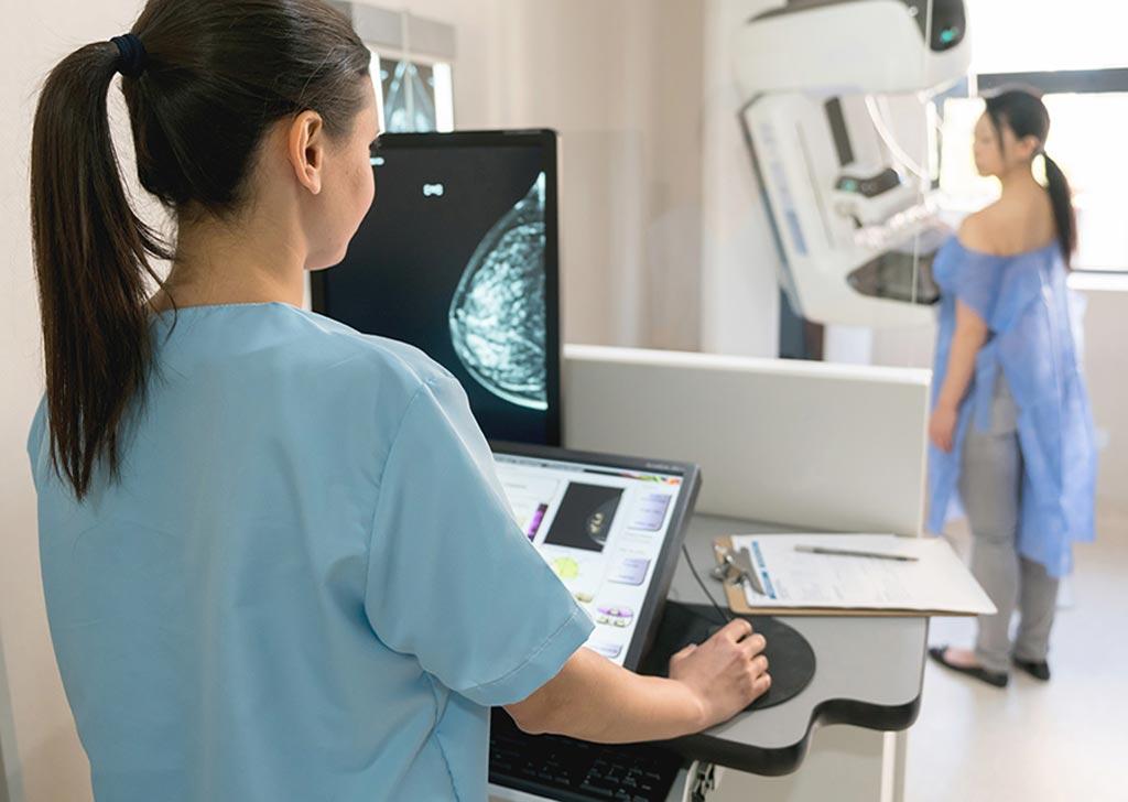 Imagen: Se espera que el crecimiento del mercado de mamografías en Norteamérica sea impulsado por el aumento de la prevalencia del cáncer de mama, una mejor infraestructura de atención médica y una mayor financiación para la investigación del cáncer de mama en la región (Fotografía cortesía de Shutterstock).