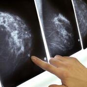 Imagen: Un estudio nuevo afirma que los radiólogos pueden discernir el cáncer de mama años antes de las lesiones clínicas (Fotografía cortesía de Getty Images).