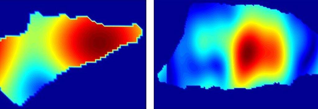 Imagen: Los patrones de reflectividad pueden diferenciar entre el carcinoma basocelular (I) y el carcinoma escamocelular (D) (Fotografía cortesía del Instituto de Tecnología Stevens).