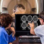 Imagen: El software e-CTA ayuda a la selección consistente de pacientes con trombectomía mecánica (Fotografía cortesía de Brainomix).