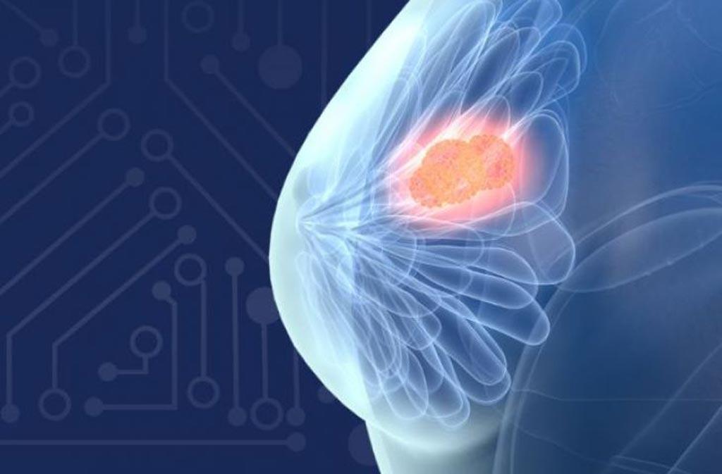Imagen: ProFound AI para Mamografía 2D analiza cada imagen de mamografía y proporciona información sobre cada caso individual (Fotografía cortesía de iCAD).