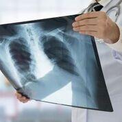 Imagen: Un estudio nuevo afirma que las cámaras de rayos X del tórax predicen la longevidad (Fotografía cortesía de Getty Images).