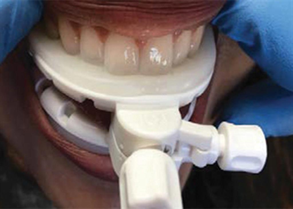 Imagen: El stent dental con desplazamiento de la lengua, GrayDuck (Fotografía cortesía de CIVCO Radiotherapy).
