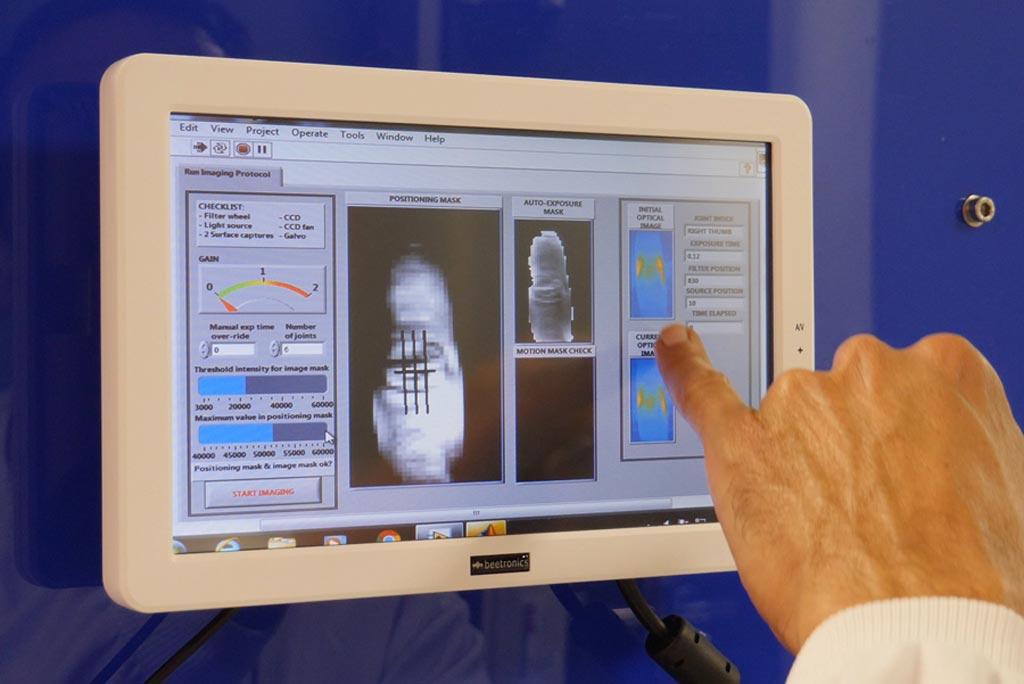 Imagen: La investigación muestra que la espectroscopia IR puede ayudar a identificar la artritis reumatoide (Fotografía cortesía de la UB).