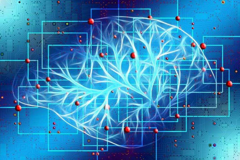 Imagen: Un algoritmo de IA que analiza las tomografías computarizadas ofrece avances potenciales en el cuidado de los accidentes cerebrovasculares (Fotografía cortesía de MDDI).