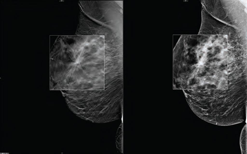 Imagen: Comparación de la tomosíntesis digital de mama con la mamografía (Fotografía cortesía de Carestream Health).
