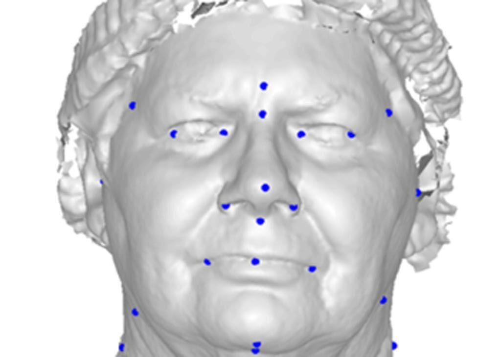 Imagen: Un estudio nuevo afirma que la fotografía facial en 3D puede predecir la AOS (Fotografía cortesía de la UWA).