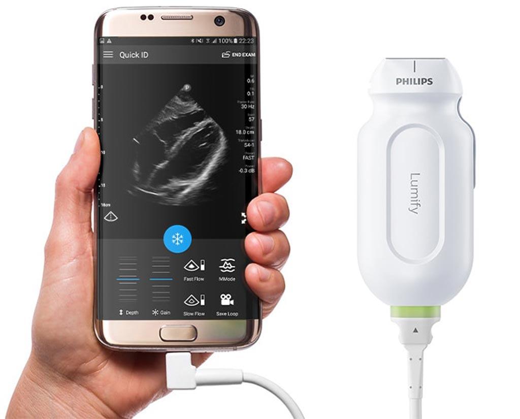 Imagen: El escáner de ultrasonido de mano Lumify (Fotografía cortesía de Philips Healthcare).