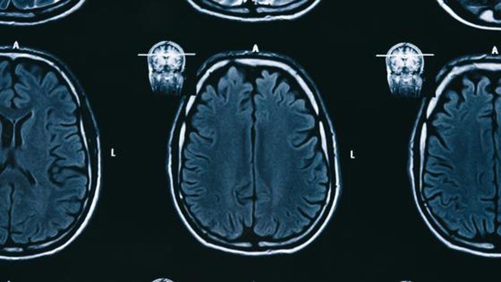 Imagen: El producto de IA de Subtle Medical, SubtleGAD, reduce el gadolinio necesario durante los exámenes de resonancia magnética sin sacrificar la calidad del diagnóstico (Fotografía cortesía de iStock).