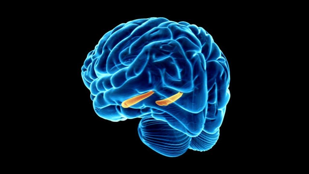 Imagen: Un estudio nuevo afirma que evitar el hipocampo durante la WBRT mejora la cognición (Fotografía cortesía de Getty Images).