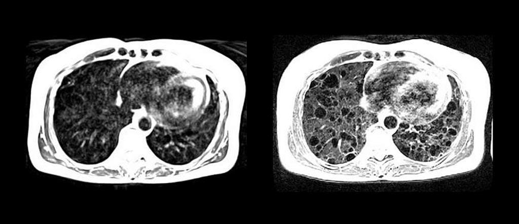 Imagen: Los quistes pulmonares se ven con más claridad con la RM de campo bajo de alto rendimiento (D) en comparación con la RM estándar (I) (Fotografía cortesía de Adrienne Campbell-Washburn/NIH).