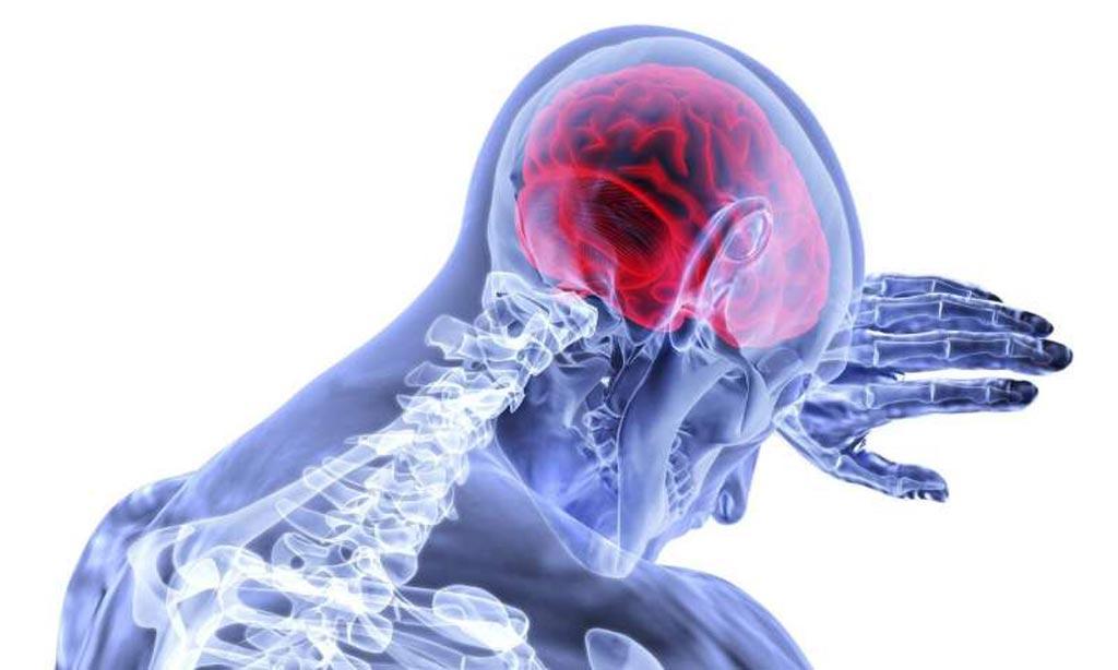 Imagen: El algoritmo de aprendizaje automático, llamado DeepSymNet, aprendió a identificar los bloqueos de los vasos sanguíneos posteriores al accidente cerebrovascular a partir de imágenes de angiografía por TC (Fotografía cortesía de Medical Xpress).