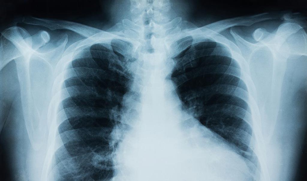 Imagen: El sistema CheXpert utiliza la IA para revisar imágenes de rayos X con la intención de ser más rápido y tan exacto como los radiólogos (Fotografía cortesía de Thinkstock).
