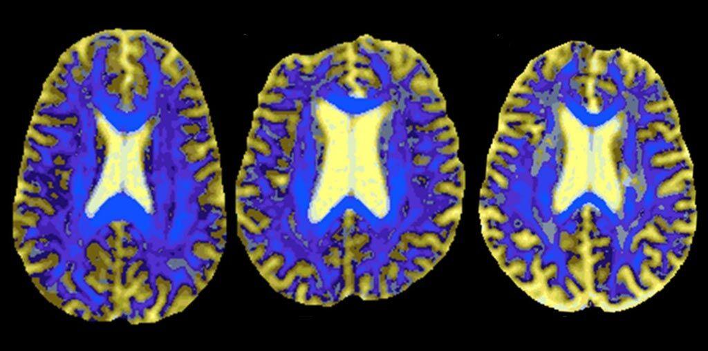 Imagen: Imágenes DSEG de un cerebro de referencia (I), un paciente estable con SVD (C) y un paciente que desarrolló demencia (D) (Fotografía cortesía de Rebecca Charlton/ Goldsmith Universidad de Londres).