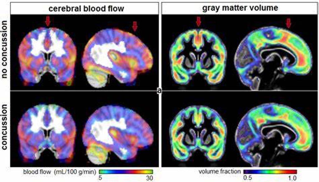 Imagen: La CBF (I) y la fracción de volumen de la materia gris (D) para los atletas con y sin historia de conmoción cerebral (Fotografía cortesía de Nathan Churchill/ Hospital St. Michael\'s).