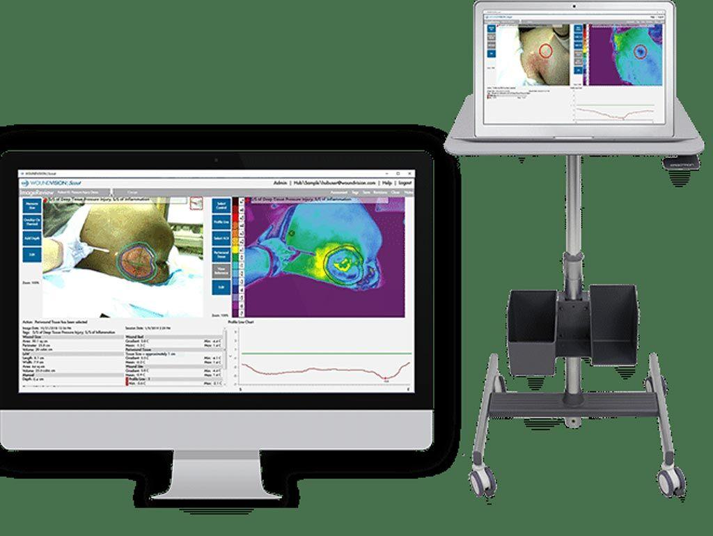 Imagen: El dispositivo de imagenología multimodal Scout, el software Scout y la aplicación móvil (Fotografía cortesía de WoundVision).