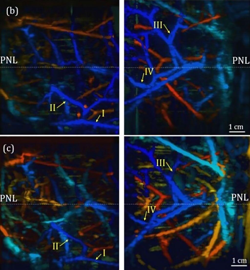 Imagen: Tejido mamario adquirido por el DSM, con los vasos en azul más cercanos a la superficie mamaria (Fotografía cortesía de Jun Xia, Universidad de Buffalo)