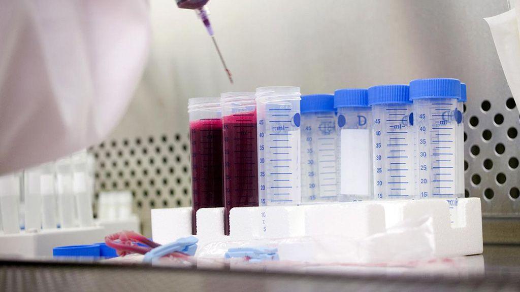 Imagen: La prueba del dímero D puede ayudar a descartar la embolia pulmonar (Fotografía cortesía de iStock)