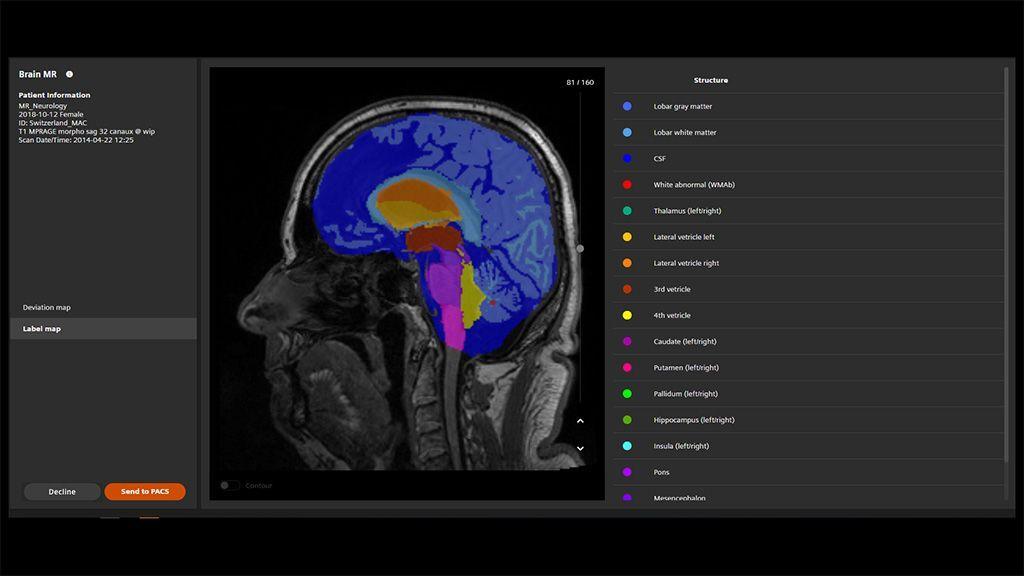 Imagen: La RM de Cerebro AI-Rad Companion para Análisis de Morfometría (Fotografía cortesía de Siemens Healthineers)