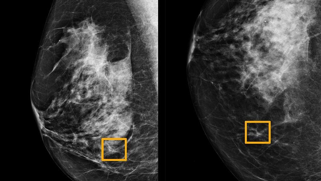 Imagen: La IA detecta el cáncer en mamografías de rutina en las que seis radiólogos no pudieron (Fotografía cortesía de la Universidad Northwestern)