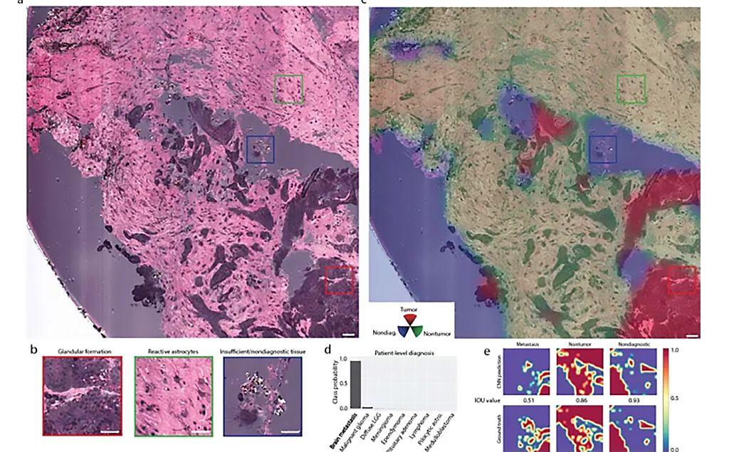 Imagen: Localización de infiltración de tumor cerebral metastásico en imágenes de SRH (Fotografía cortesía del MGH)