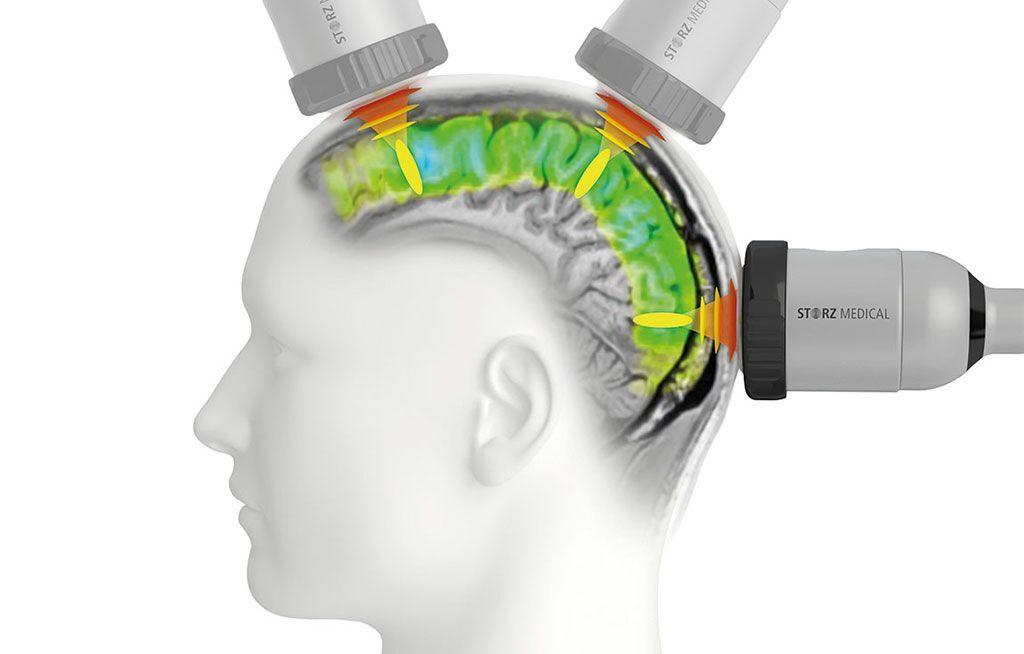 Imagen: La sonicación clínica puede ayudar a revertir la enfermedad de Alzheimer (Fotografía cortesía de Storz Medical)