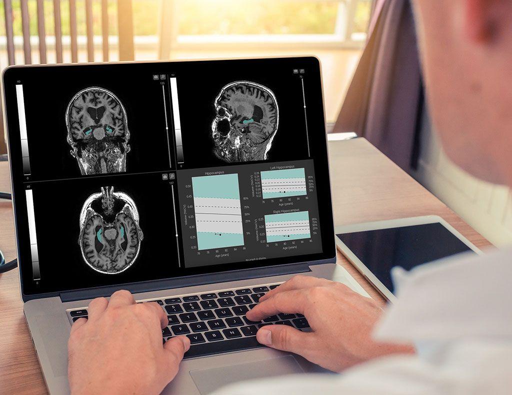 Imagen: Un software ayuda a la detección temprana de las enfermedades neurodegenerativas (Fotografía cortesía de Qynapse)