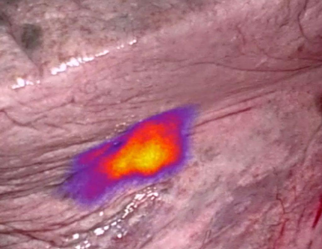 Imagen: Los marcadores fluorescentes ayudan a identificar y eliminar las células cancerosas durante la cirugía (Fotografía cortesía de On Target)