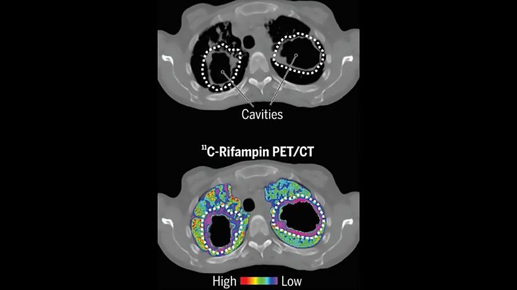 Imagen: Las imágenes dinámicas de TEP/TC con 11C-rifampicina pueden ayudar al tratamiento de la tuberculosis (Fotografía cortesía de Johns Hopkins Medicine)