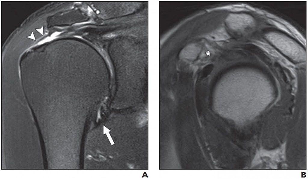 Imagen: Cápsula articular normal en el receso axilar (A); Rotura de grosor completo del tendón supraespinoso (B) (Fotografía cortesía del AJR)