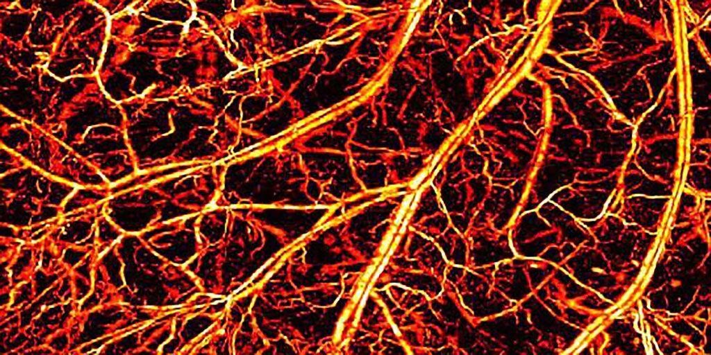 Imagen: Imágenes fotoacústicas de microvasos en las orejas de ratones (Fotografía cortesía de Chulhong Kim/POSTECH)