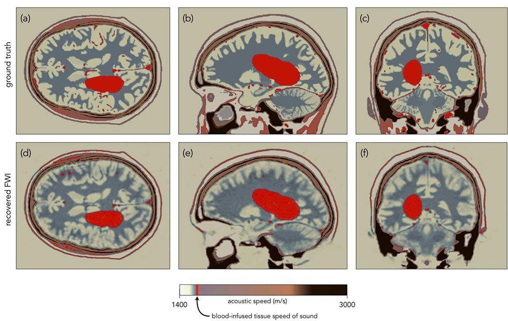 Imagen: Imágenes simuladas por computadora de la FWI detectando una hemorragia cerebral (Fotografía cortesía del Colegio Imperial de Londres)