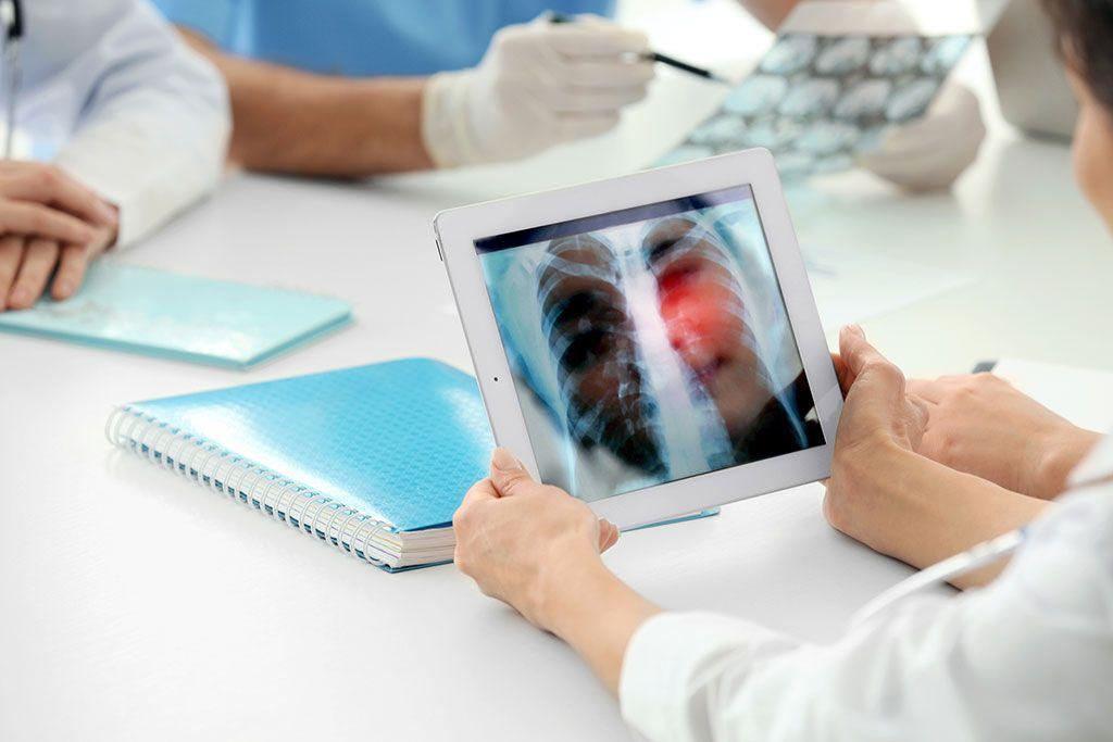 Imagen: Las TC de dosis bajas largas no causan daño al ADN (Fotografía cortesía de Shutterstock)