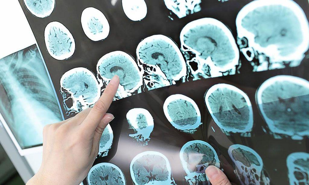 Imagen: Se deben evitar los exámenes de resonancia magnética en pacientes con COVID-19 (Fotografía cortesía de Shutterstock)