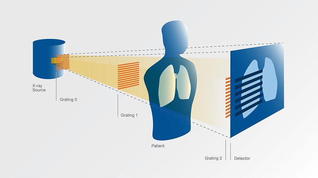 Imagen: Esquema de un dispositivo para imágenes de rayos X de campo oscuro (Fotografía cortesía de la TUM)